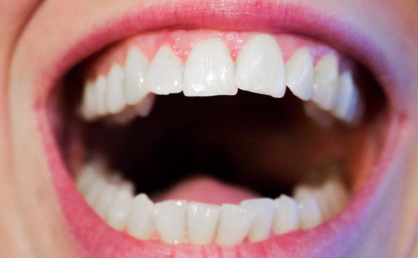 Aktualna technika używana w salonach stomatologii estetycznej być może spowodować, że odbierzemy piękny uśmiech.